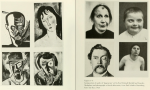 Juxtaposition of art by Karl Schmidt-Rottluff and Amedo Modligliani Showing Facial Deformities