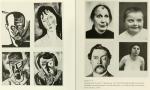 Juxtaposition of art by Karl Schmidt-Rottluff and Amedo Modligliani Showing Facial Deformities